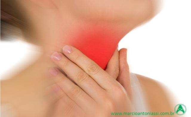 câncer garganta