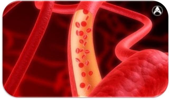 doencas-vasculares-perifericas