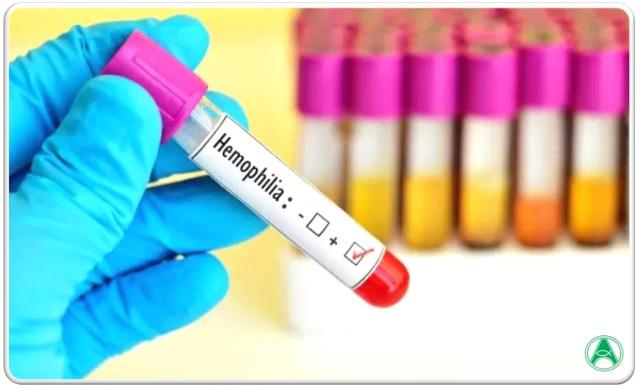 márcio hemofilia