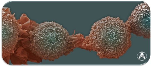 cancer microsoft