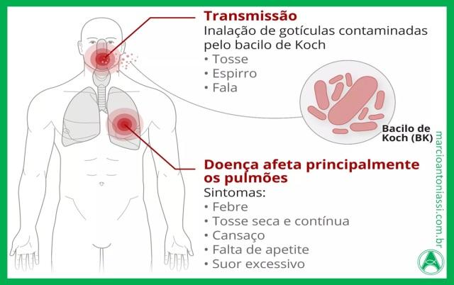 exame tuberculose